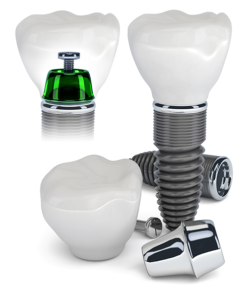 Implant Dentist in Torrance