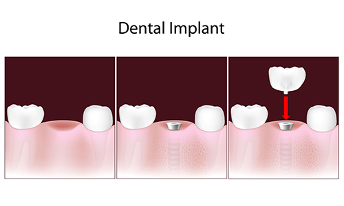 Dental Implants in Torrance